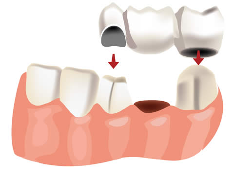 Treatments at Southfield Dental Practice, Doncaster